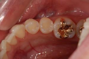 左下小臼歯のオールセラミックインレー症例