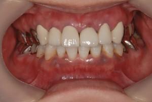 下顎に4本のインプラントを埋入し義歯を固定する治療