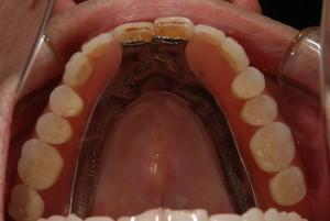 前歯2本以外をノンクラスプ義歯で治療した症例