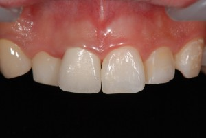 歯肉縁下カリエスで抜歯予定の歯を矯正治療で抜歯回避できた症例