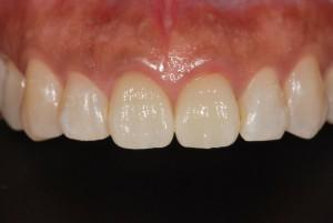 上顎前歯2本をオールセラミッククラウンで治療した症例