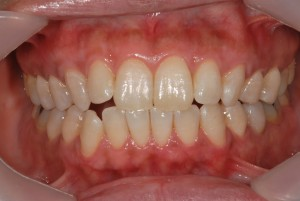 上下の前歯をホワイトニングした症例