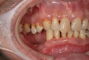 臼歯部咬合崩壊をノンクラスプ義歯で回復した症例