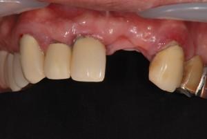 下顎前歯部欠損を審美的に治療した症例