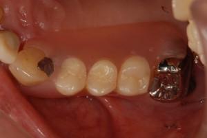 右上にノンクラスプ義歯を入れた症例