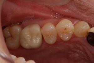 上の奥歯をジルコニアセラミックスで修復した症例