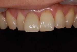 右上前歯を保険治療から自費治療のメタルボンドにやり替え、さらなる審美性追求によりオールセラミックにやりかえた症例