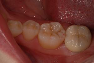 左下奥歯にハイブリッドセラミッククラウンをセットした症例