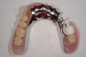 上の義歯を保険から自費ノンクラスプ義歯に変え満足を得た症例