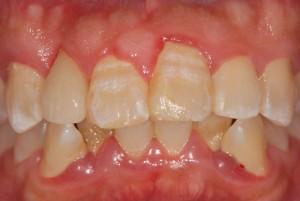 右上前歯をオールセラミッククラウン(e-max)で治療した例