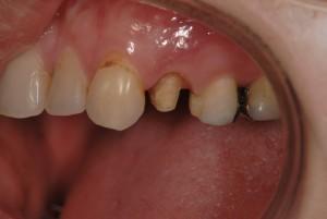 ハイブリッドセラミッククラウンの被せから歯肉退縮したのでやり替えた症例