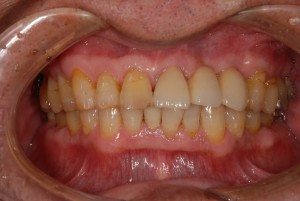 抜歯即時埋入で治療期間と短縮し審美回復した症例