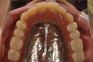 下顎に2本インプラントを埋入し総入れ歯の維持とした症例