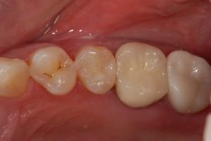 右上小臼歯にオールセラミッククラウンを装着した症例