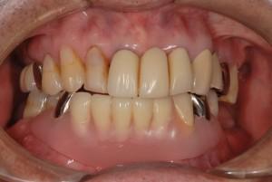 上顎にインプラント 下顎にノンクラスプ義歯をいれて対応した症例