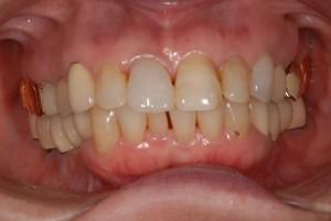 抜歯即時埋入(ばっしそくじまいにゅう)と抜歯待時埋入(ばっしたいじまいにゅう)を併用して咬みあわせを再構成した症例