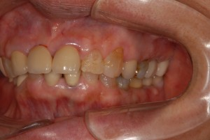 歯冠長増大術を応用しインプラントとの咬合の調和を図った症例