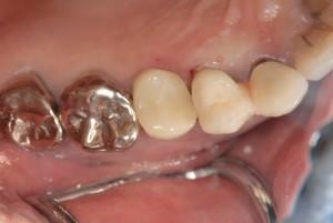 右上4抜歯即時埋入 (2)