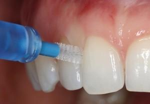 歯間ブラシとフロスどちらを使うべきですか?