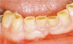 歯ぎしりと歯並びの関係とは