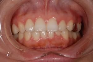 HBCIn術前-10-300x201