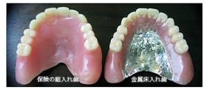 自費の入れ歯は保険よりも細菌がつきにくいのはなぜ?
