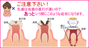 image_cavity_treatment18