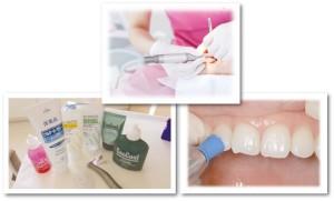 歯はどれぐらいの期間で汚れるの?