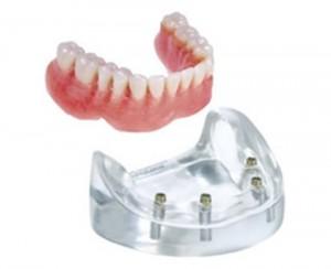 denture-implant01