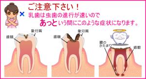 image_cavity_treatment18