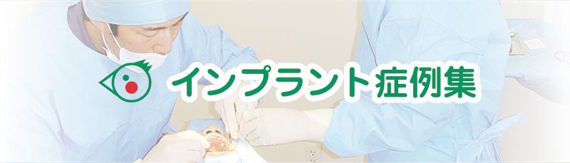 インプラント症例集
